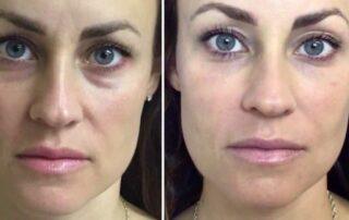 Restylane under eyes