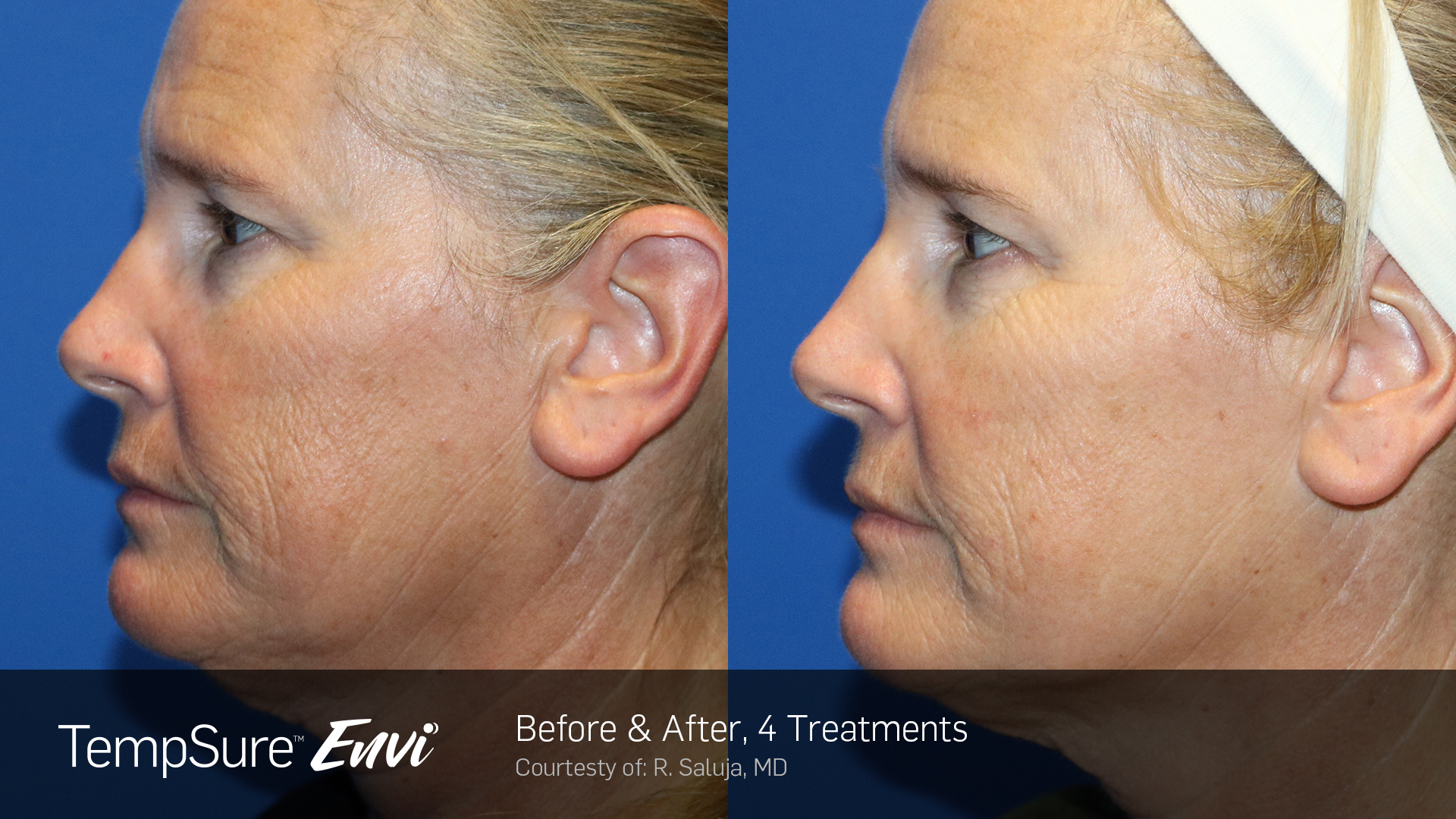 TempSure wrinkle reduction and towel tightening