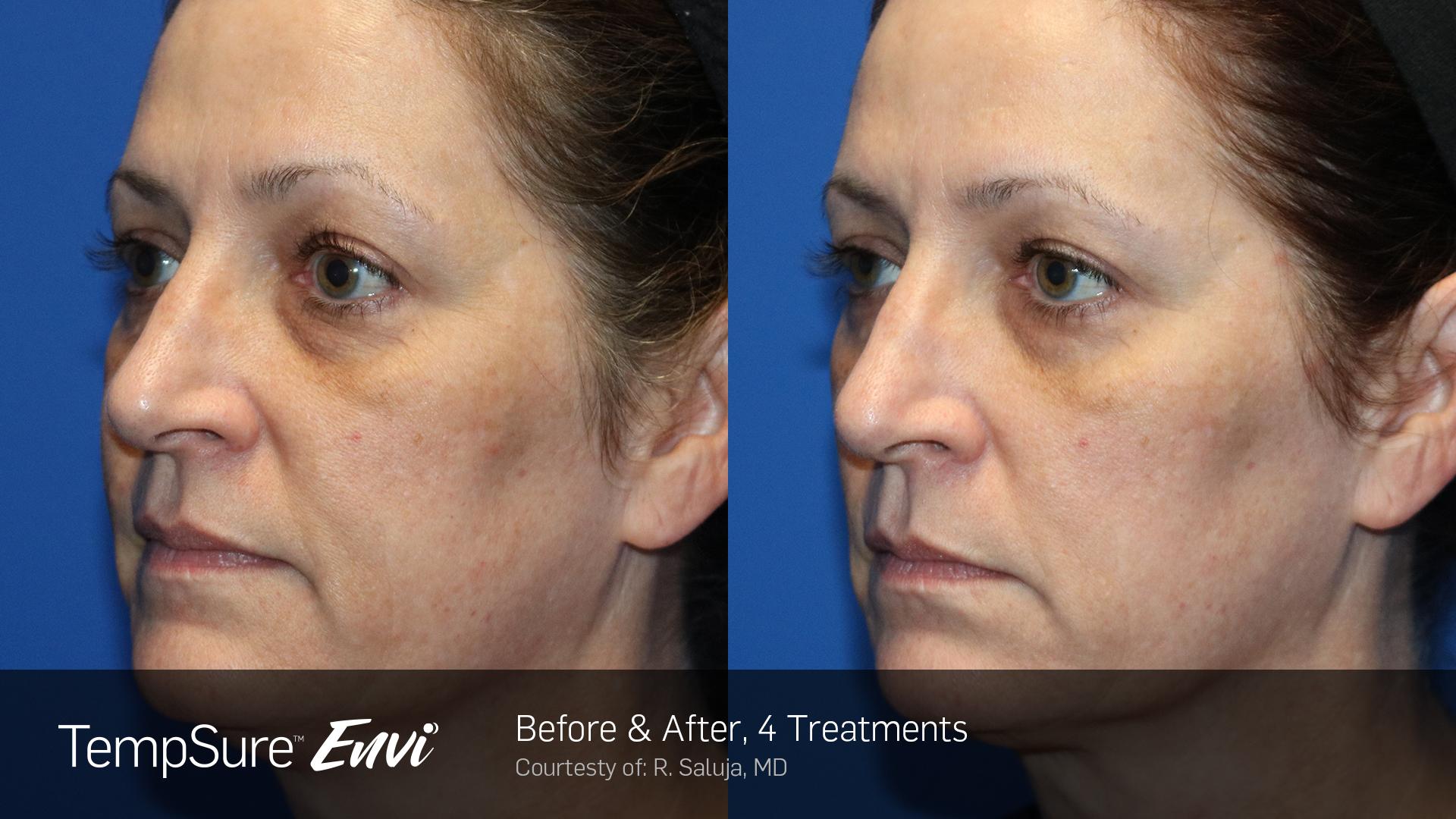 TempSure Skin Tightening and collagen stimulation in face